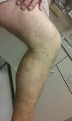 leg after