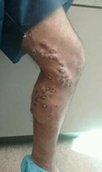 leg before